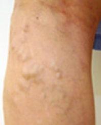 側枝型静脈瘤 写真